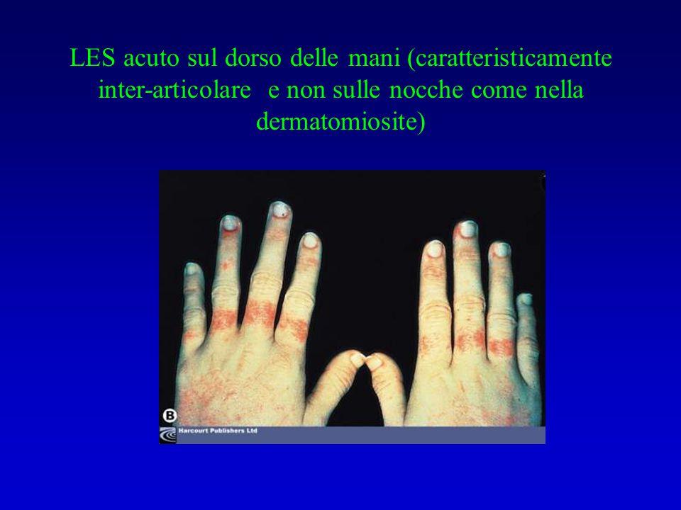 LES acuto sul dorso delle mani (caratteristicamente inter-articolare e non sulle nocche come nella dermatomiosite)