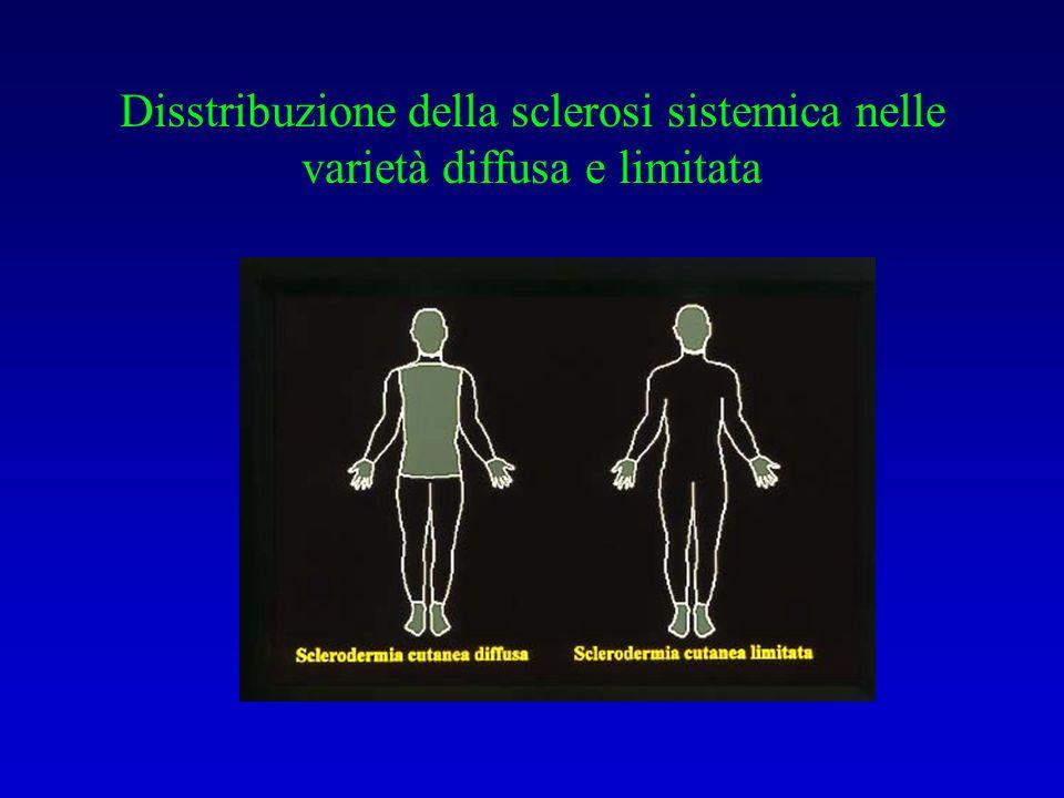 Disstribuzione della sclerosi sistemica nelle varietà diffusa e limitata