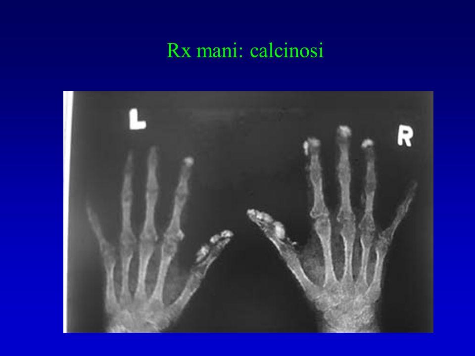 Rx mani: calcinosi
