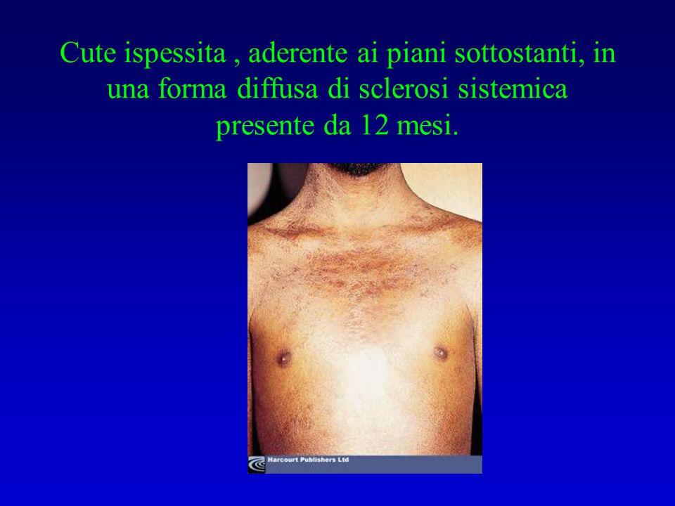 Cute ispessita , aderente ai piani sottostanti, in una forma diffusa di sclerosi sistemica presente da 12 mesi.