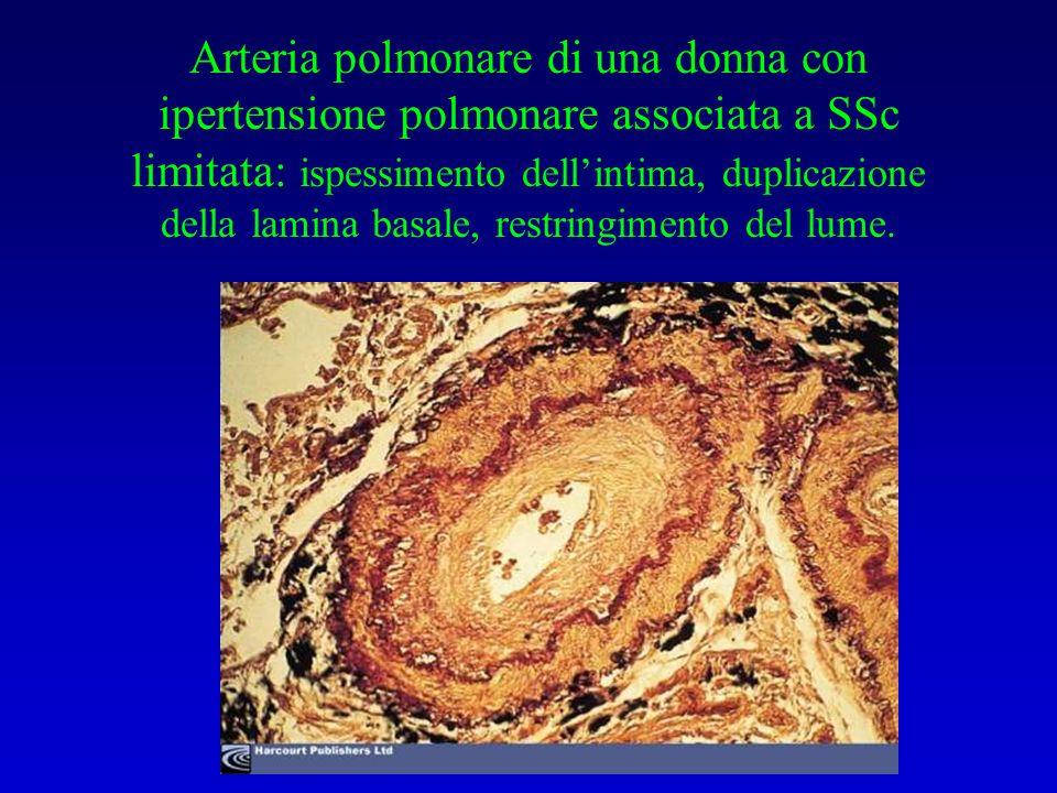Arteria polmonare di una donna con ipertensione polmonare associata a SSc limitata: ispessimento dell'intima, duplicazione della lamina basale, restringimento del lume.
