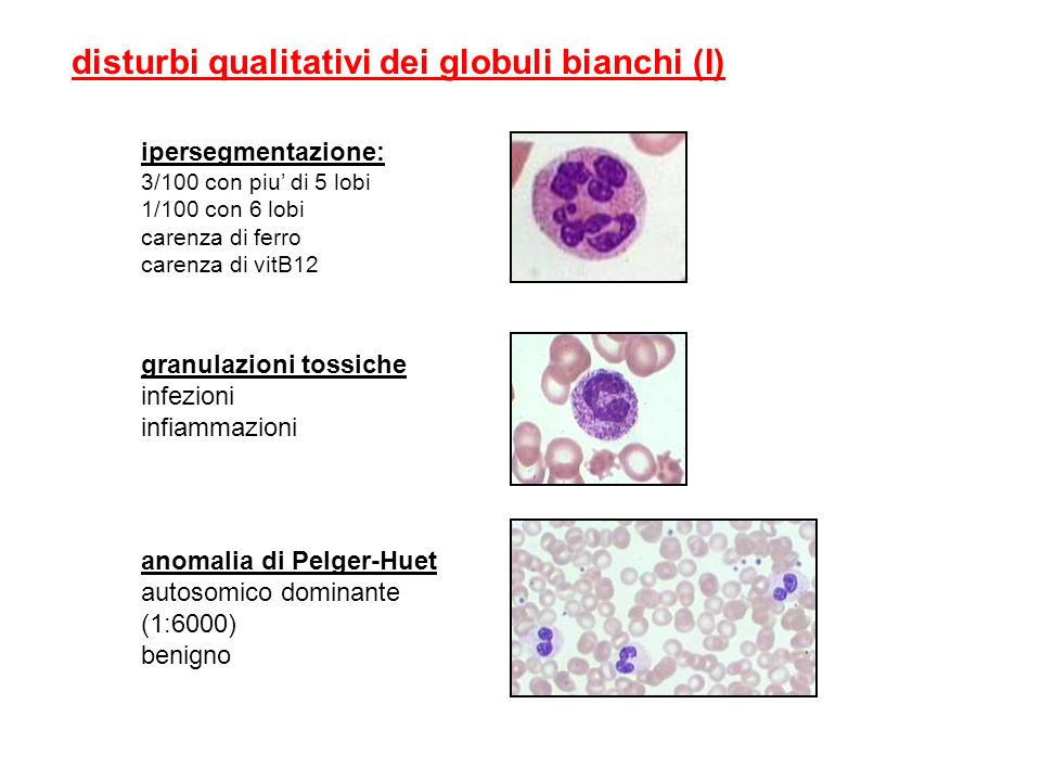 disturbi qualitativi dei globuli bianchi (I)
