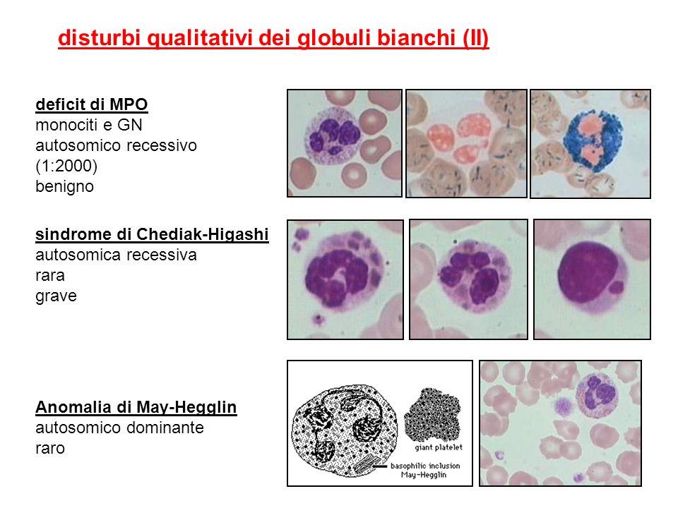 disturbi qualitativi dei globuli bianchi (II)