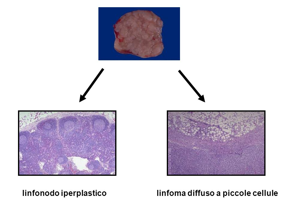 linfonodo iperplastico