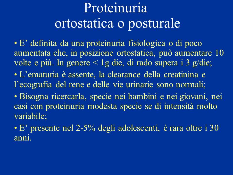 Proteinuria ortostatica o posturale