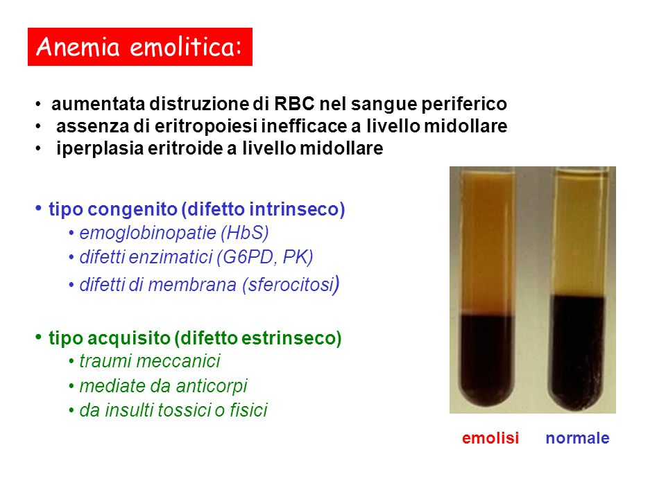 Anemia emolitica: tipo congenito (difetto intrinseco)