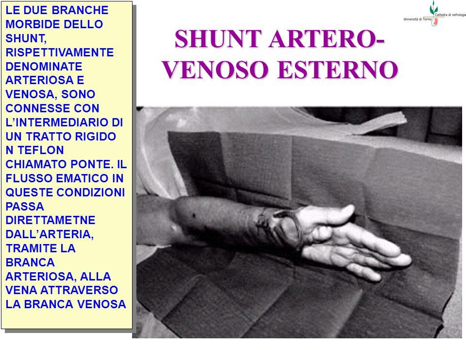 SHUNT ARTERO-VENOSO ESTERNO