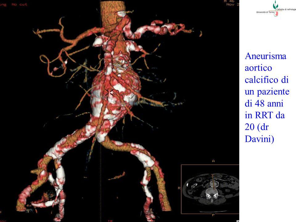 Aneurisma aortico calcifico di un paziente di 48 anni in RRT da 20 (dr Davini)