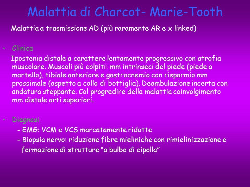 Malattia di Charcot- Marie-Tooth