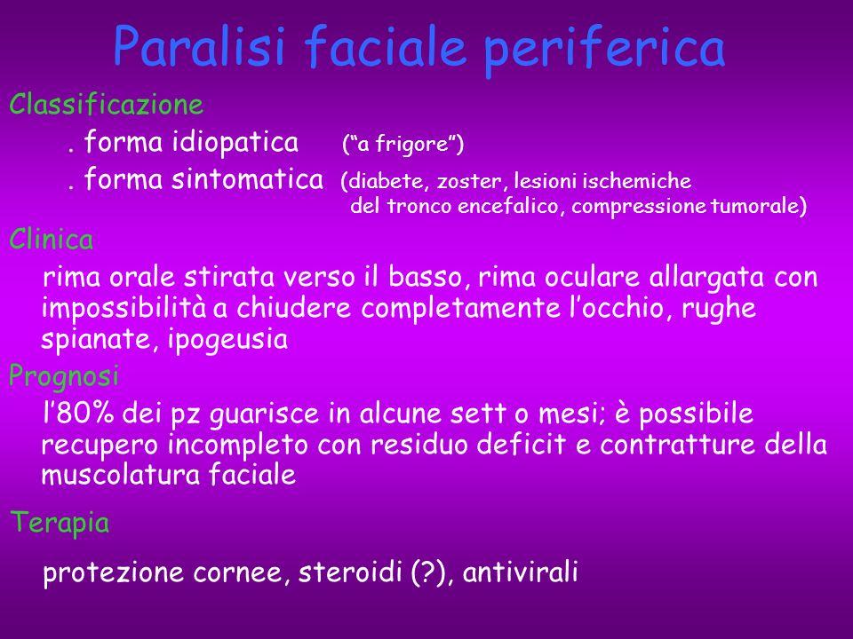 Paralisi faciale periferica
