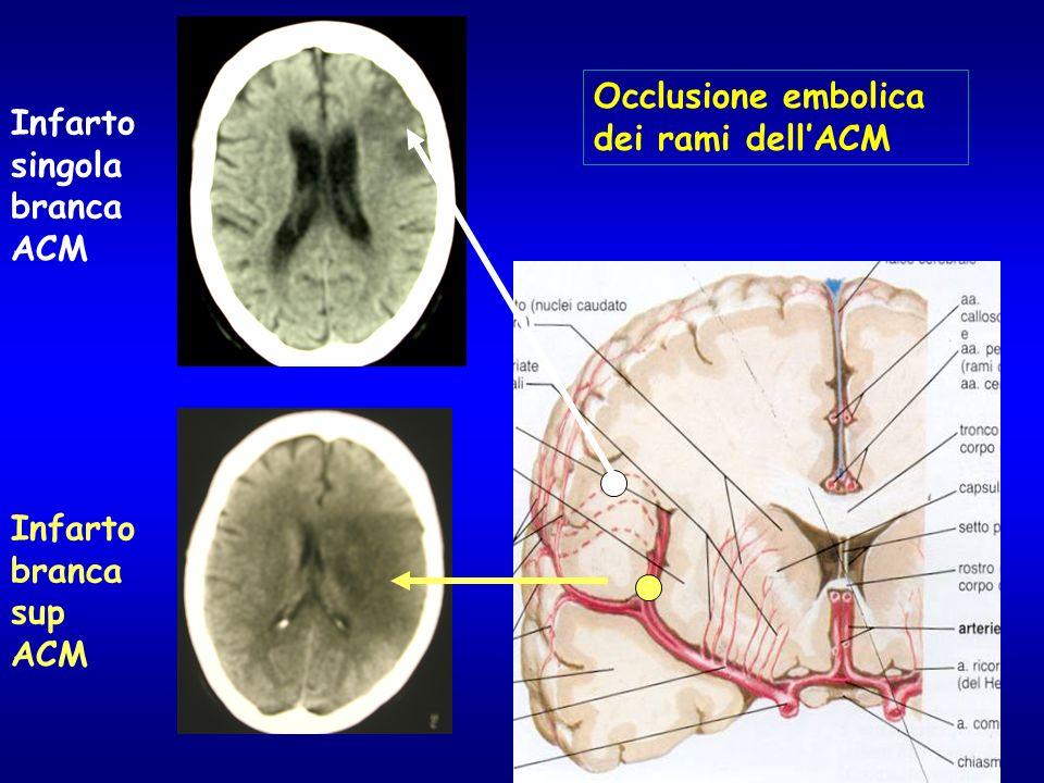 Occlusione embolica dei rami dell'ACM Infarto singola branca ACM Infarto branca sup ACM