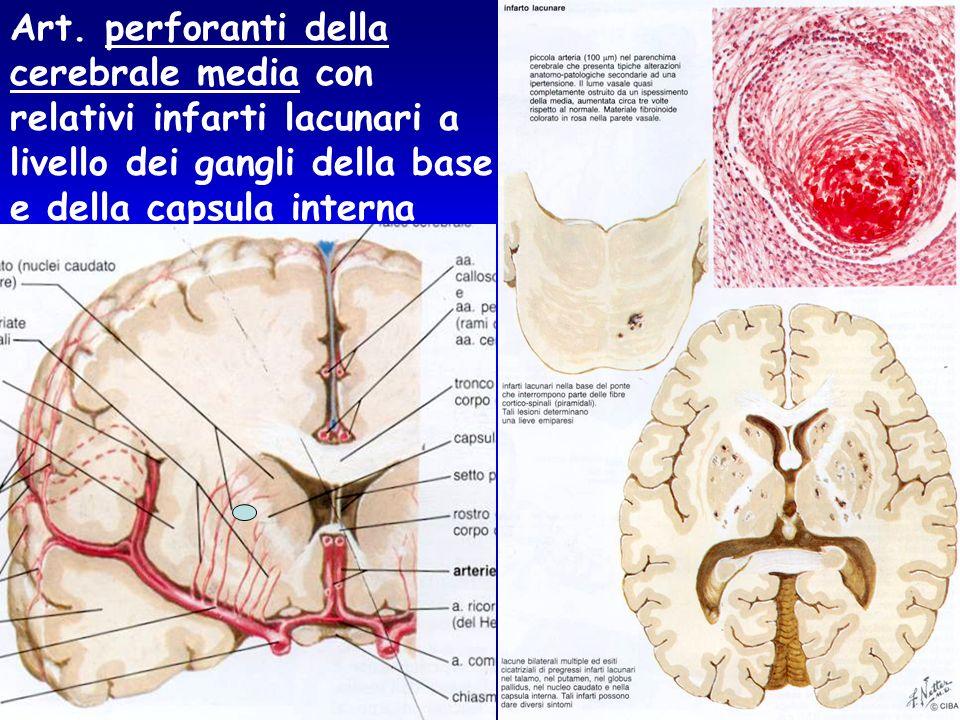 Art. perforanti della cerebrale media con. relativi infarti lacunari a. livello dei gangli della base.