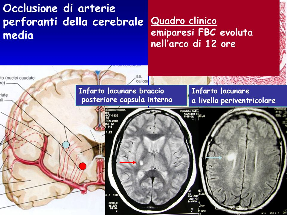 perforanti della cerebrale media