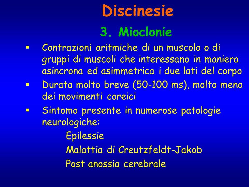 Discinesie 3. Mioclonie.