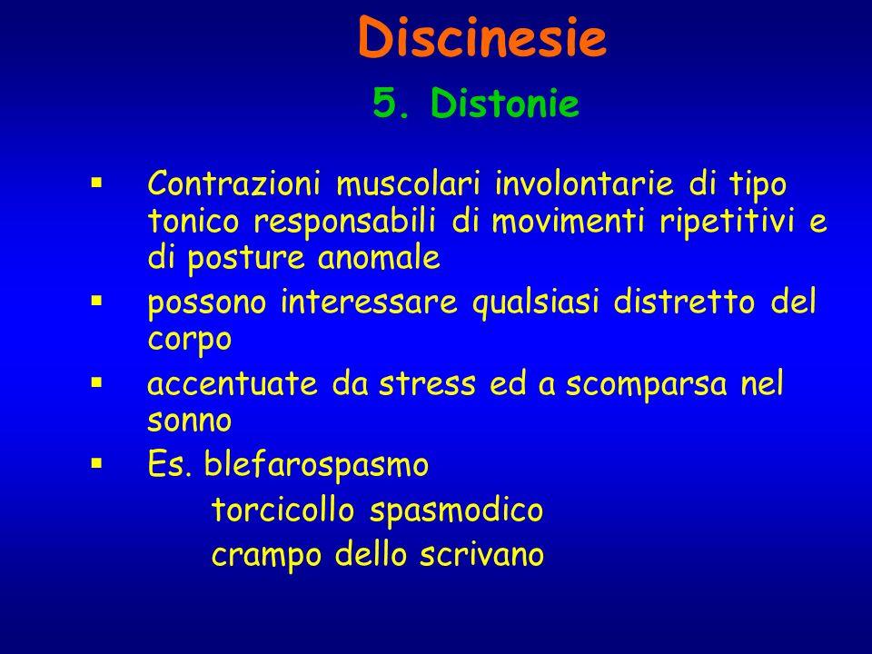 Discinesie 5. Distonie. Contrazioni muscolari involontarie di tipo tonico responsabili di movimenti ripetitivi e di posture anomale.