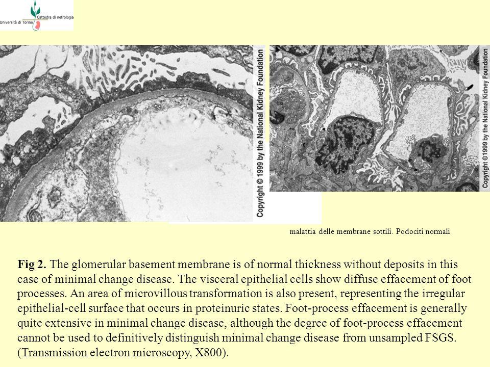 malattia delle membrane sottili. Podociti normali