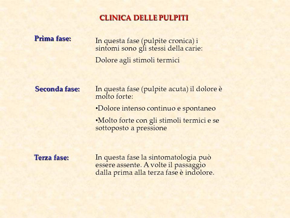 CLINICA DELLE PULPITI Prima fase: In questa fase (pulpite cronica) i sintomi sono gli stessi della carie: