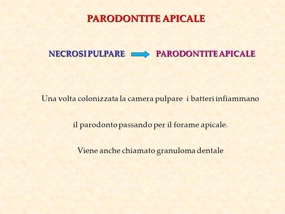 PARODONTITE APICALE NECROSI PULPARE PARODONTITE APICALE
