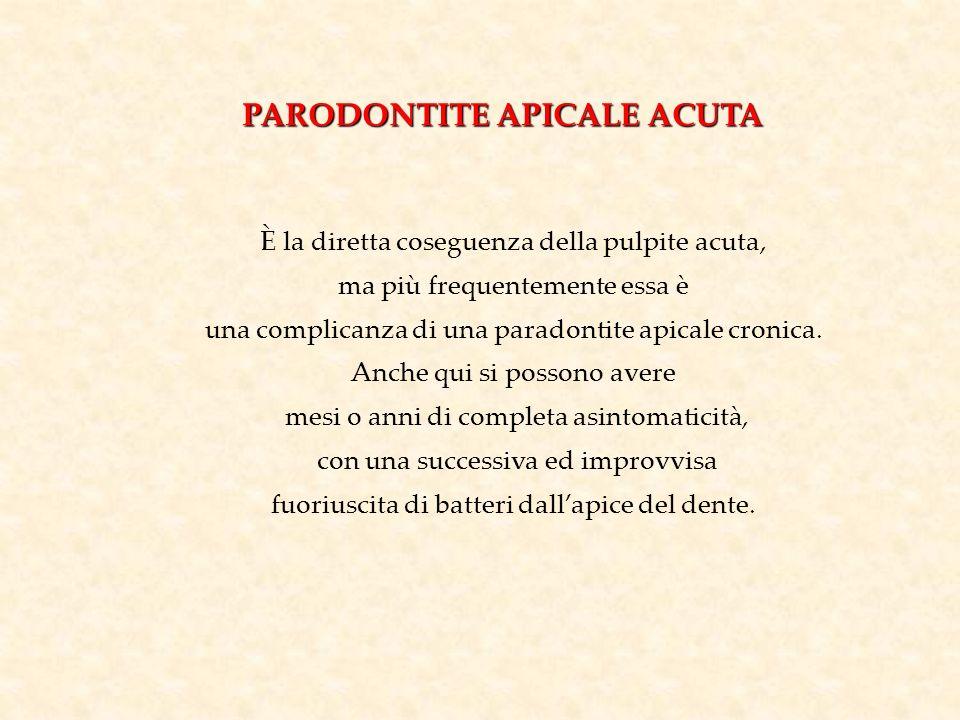 PARODONTITE APICALE ACUTA