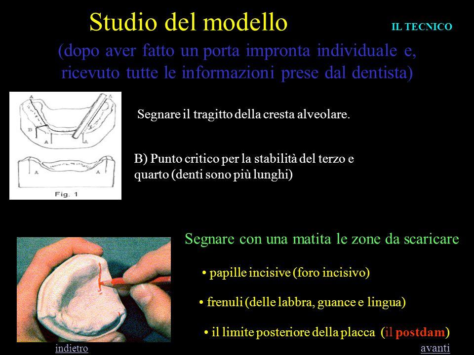 Studio del modelloIL TECNICO.