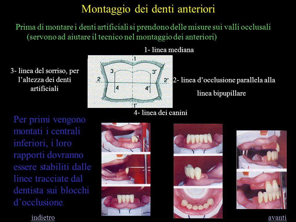Montaggio dei denti anteriori