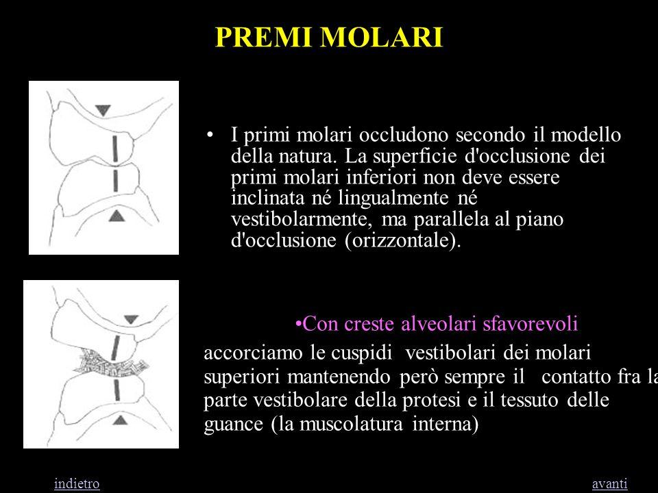 Con creste alveolari sfavorevoli