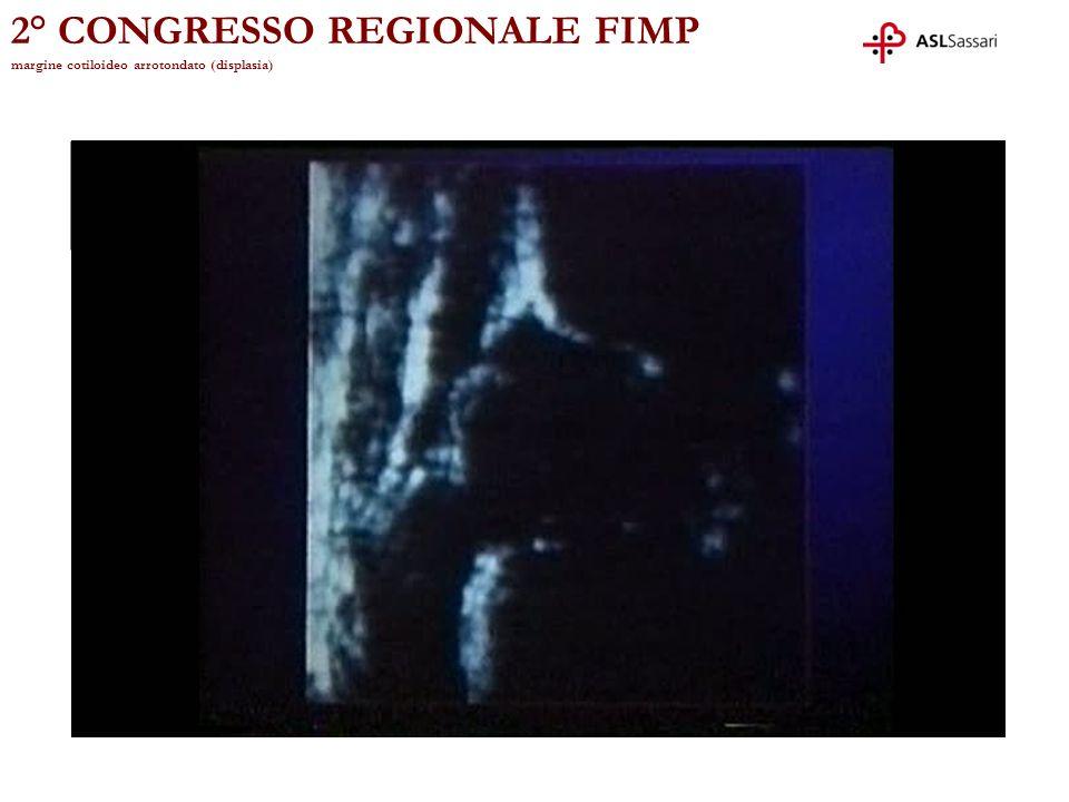 2° CONGRESSO REGIONALE FIMP margine cotiloideo arrotondato (displasia)