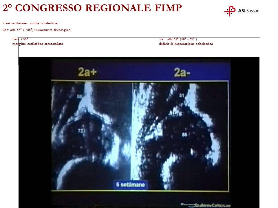 2° CONGRESSO REGIONALE FIMP a sei settimane anche borderline 2a+ alfa 58° (>55°) immaturità fisiologica beta >55° 2a – alfa 51° (50° - 59° ) margine cotiloideo arrotondato deficit di maturazione scheletrica
