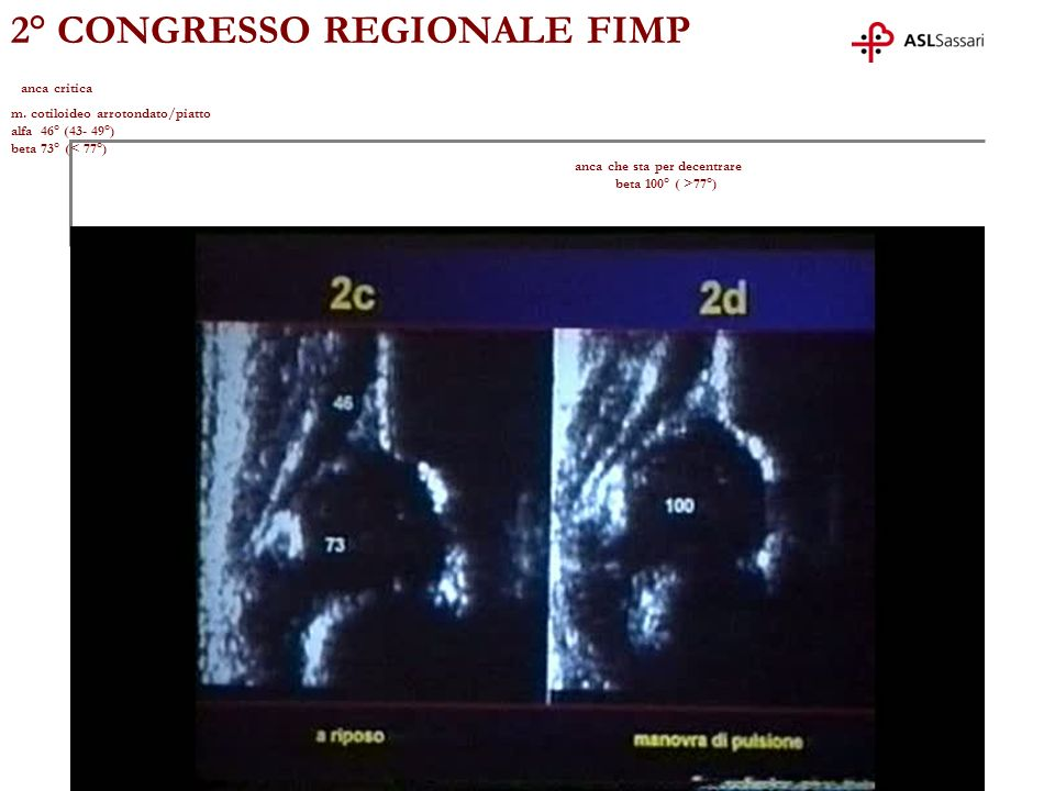 2° CONGRESSO REGIONALE FIMP anca critica m