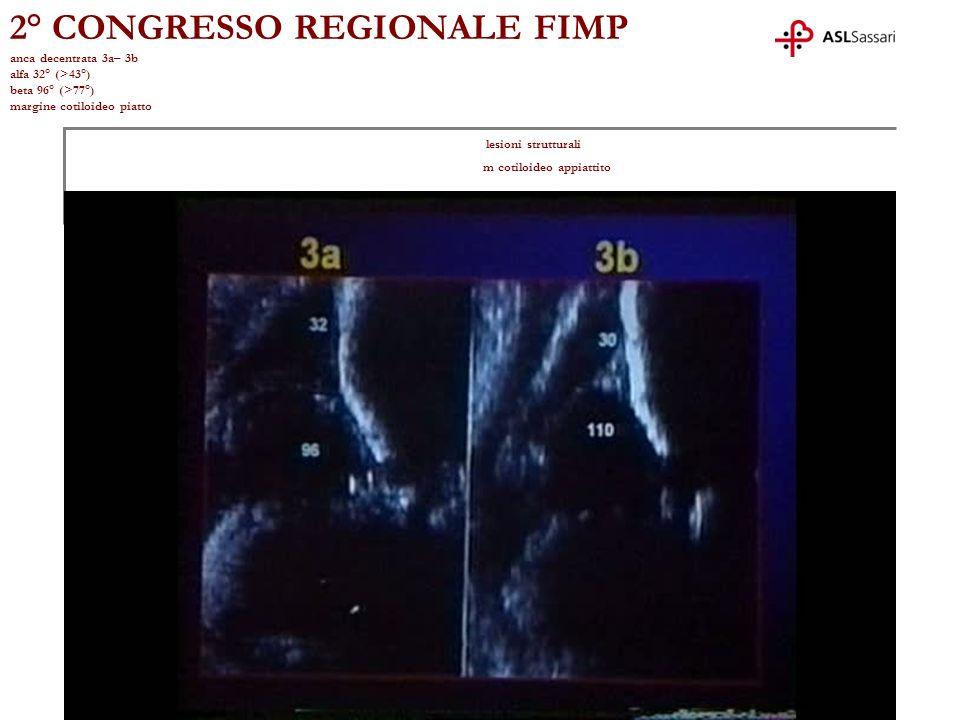 2° CONGRESSO REGIONALE FIMP anca decentrata 3a– 3b alfa 32° (>43°) beta 96° (>77°) margine cotiloideo piatto lesioni strutturali m cotiloideo appiattito