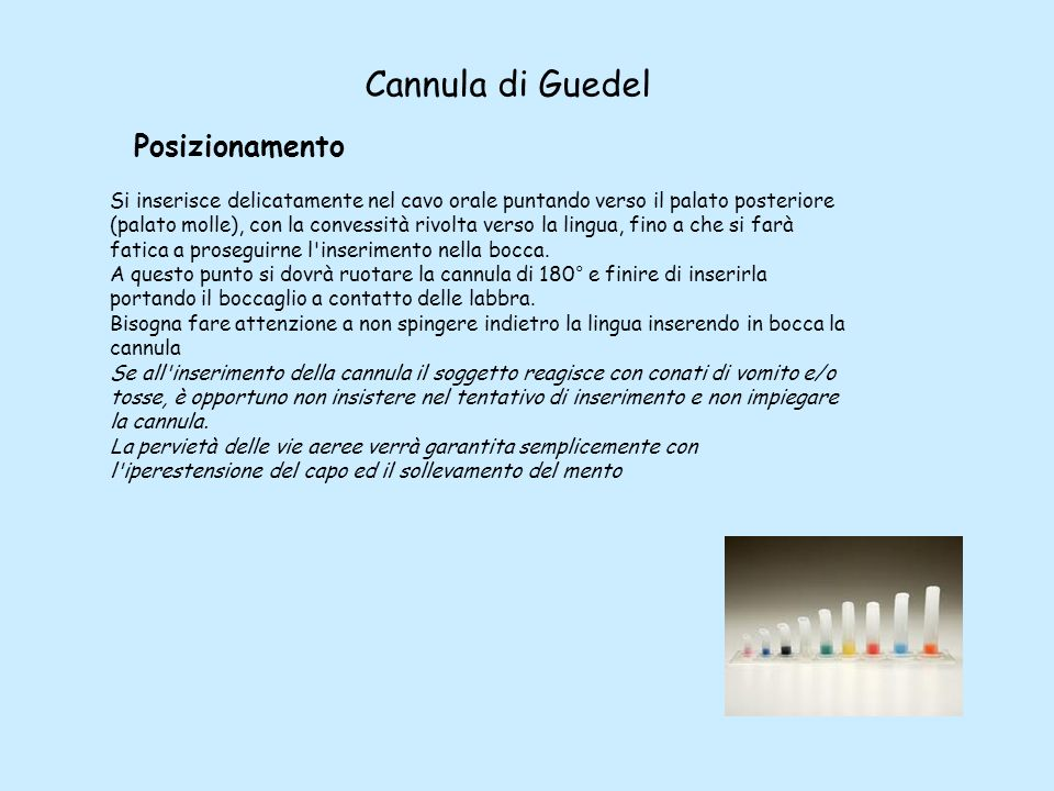 Cannula di Guedel Posizionamento