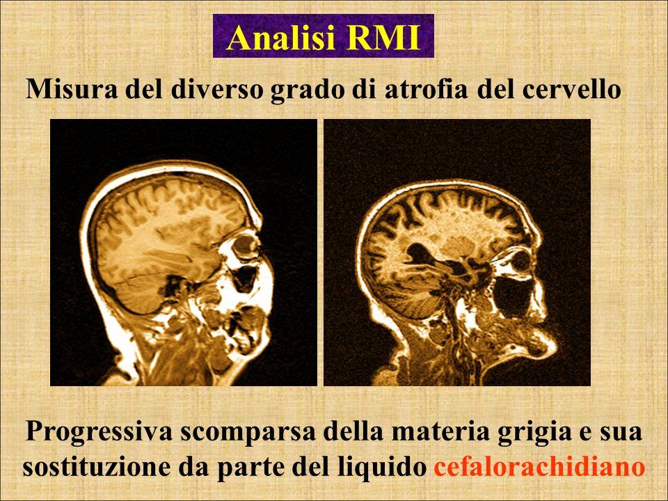 Analisi RMI Misura del diverso grado di atrofia del cervello