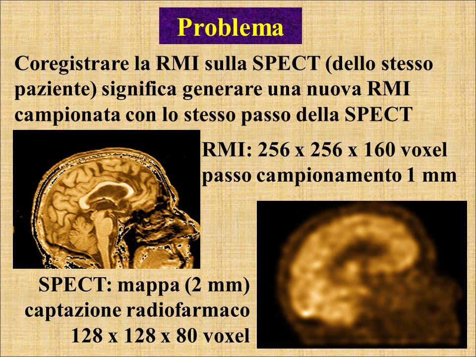 Problema Coregistrare la RMI sulla SPECT (dello stesso paziente) significa generare una nuova RMI campionata con lo stesso passo della SPECT.