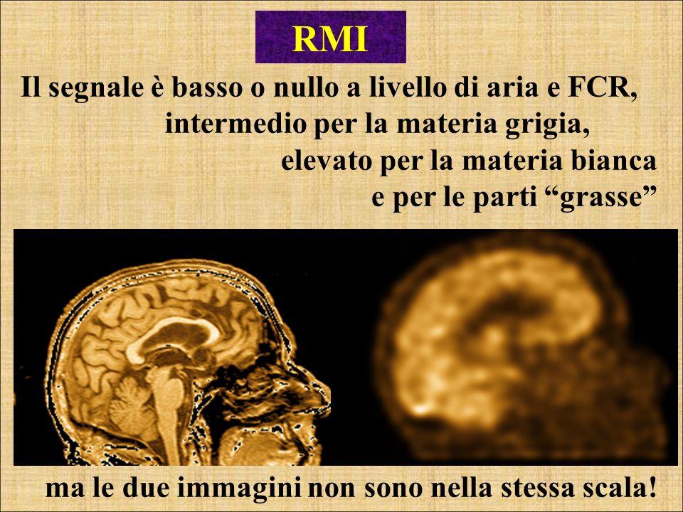 RMI Il segnale è basso o nullo a livello di aria e FCR,
