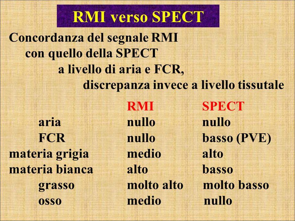 RMI verso SPECT Concordanza del segnale RMI con quello della SPECT