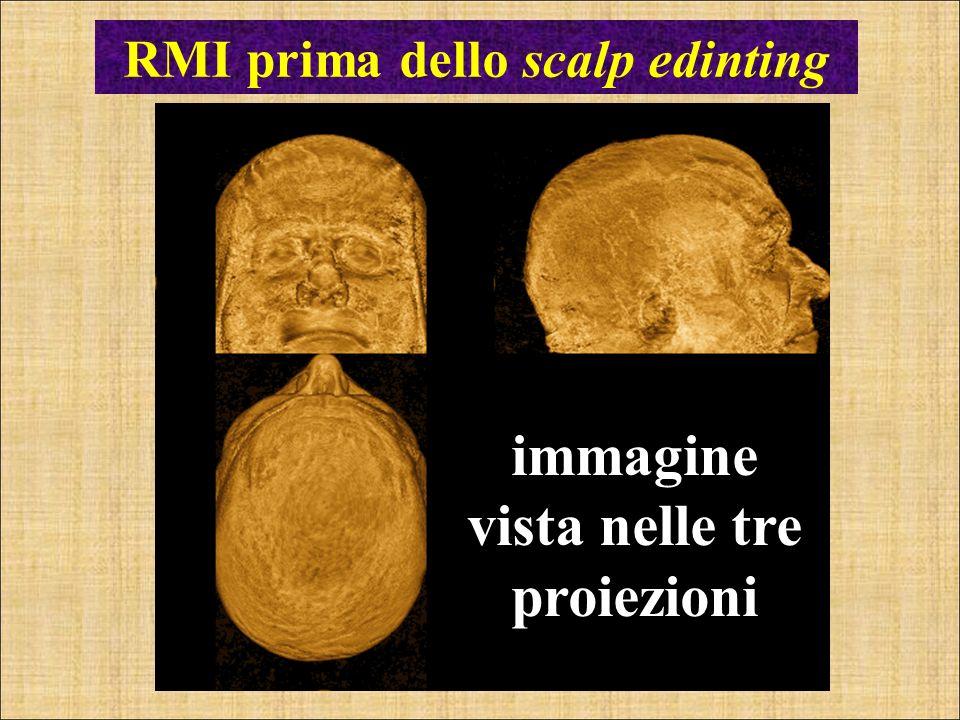 RMI prima dello scalp edinting immagine vista nelle tre proiezioni