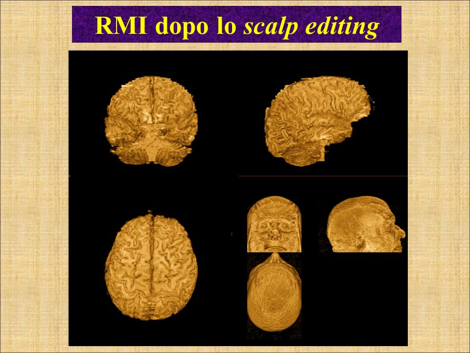 RMI dopo lo scalp editing