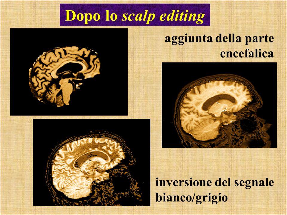 Dopo lo scalp editing aggiunta della parte encefalica