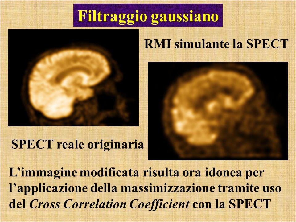 Filtraggio gaussiano RMI simulante la SPECT SPECT reale originaria