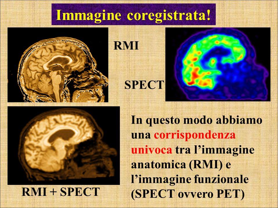 Immagine coregistrata!