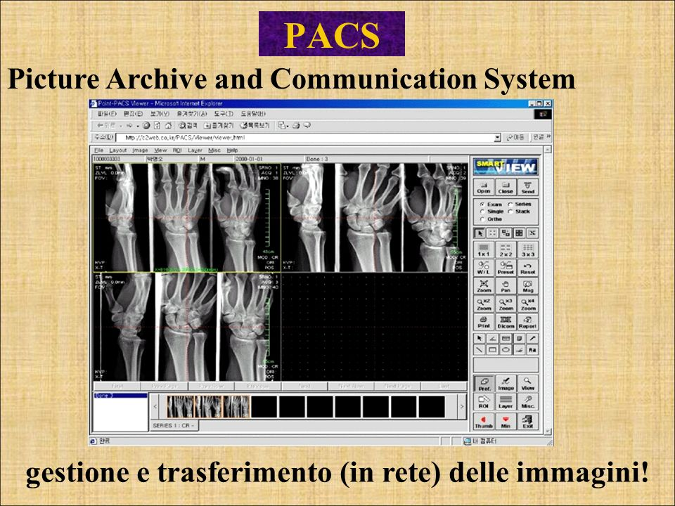 PACS Picture Archive and Communication System
