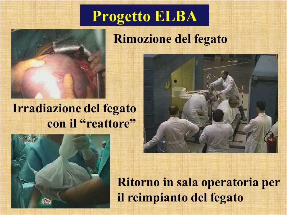 Progetto ELBA Rimozione del fegato