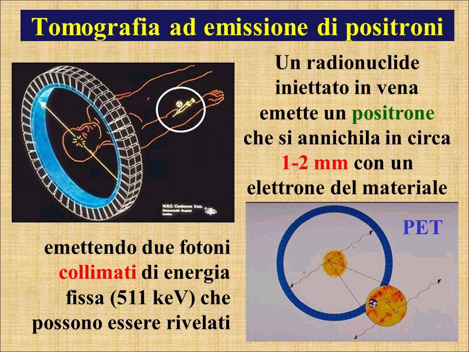 Tomografia ad emissione di positroni