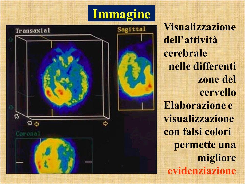 Immagine Visualizzazione dell'attività cerebrale
