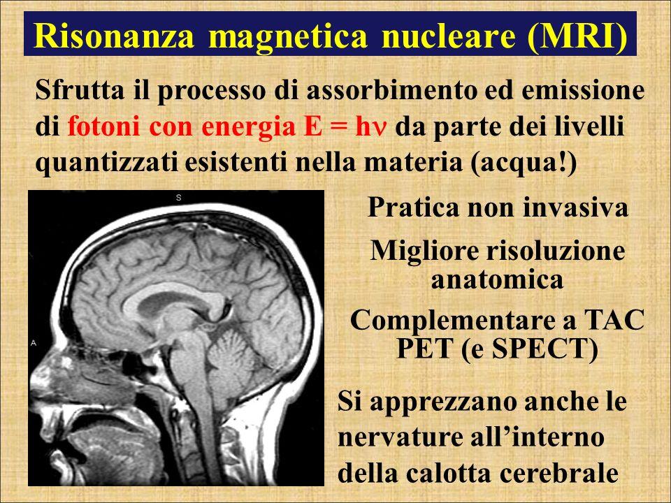 Risonanza magnetica nucleare (MRI)