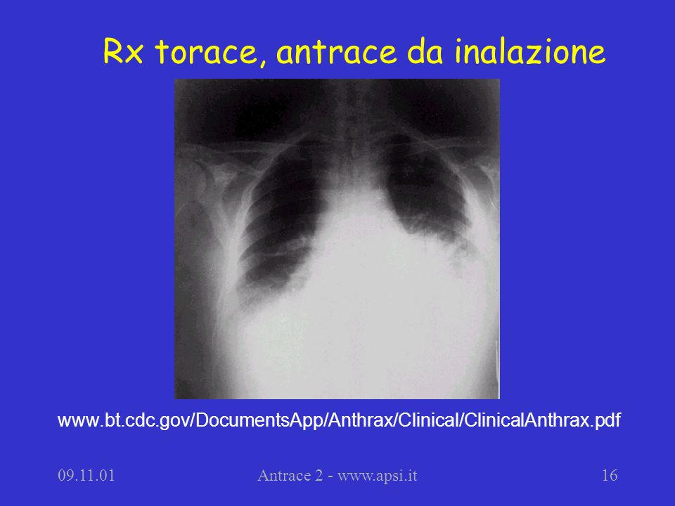 Rx torace, antrace da inalazione