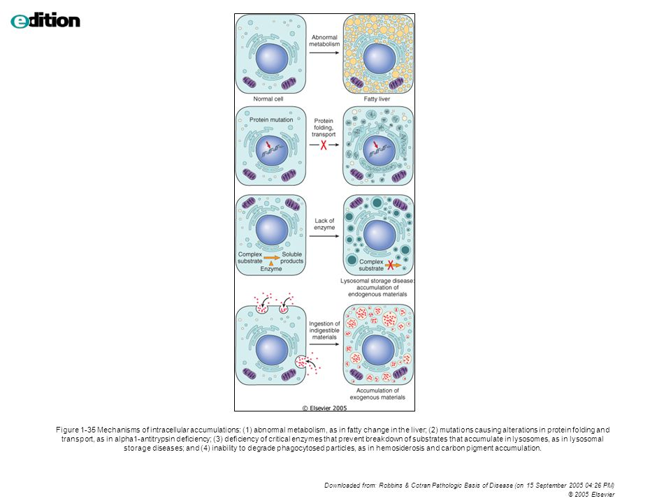 Figure 1-35 Mechanisms of intracellular accumulations: (1) abnormal metabolism, as in fatty change in the liver; (2) mutations causing alterations in protein folding and transport, as in alpha1-antitrypsin deficiency; (3) deficiency of critical enzymes that prevent breakdown of substrates that accumulate in lysosomes, as in lysosomal storage diseases; and (4) inability to degrade phagocytosed particles, as in hemosiderosis and carbon pigment accumulation.