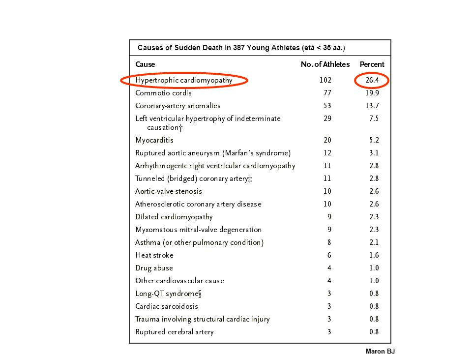 Causes of Sudden Death in 387 Young Athletes (età < 35 aa.)