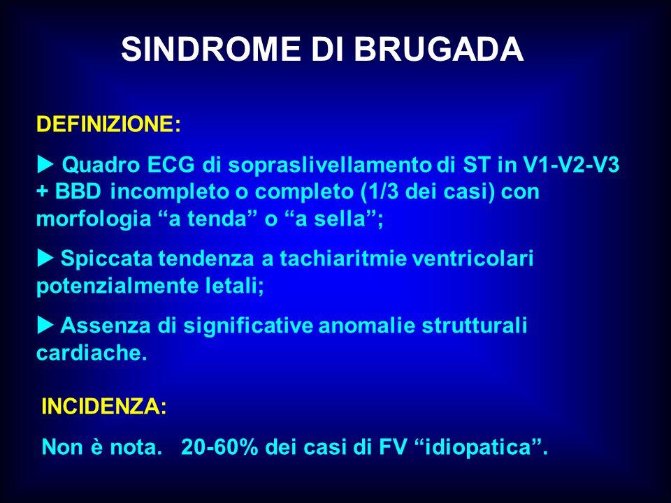 SINDROME DI BRUGADA DEFINIZIONE: