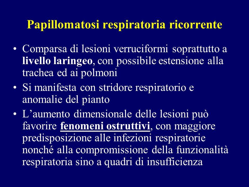 Papillomatosi respiratoria ricorrente